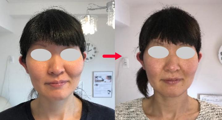 小顔美整顔矯正 施術前後の比較画像
