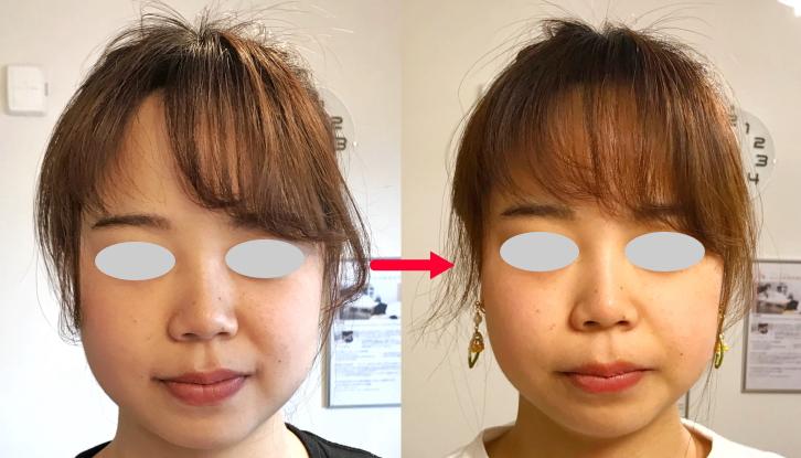 小顔美整顔矯正 施術前後の比較画像2