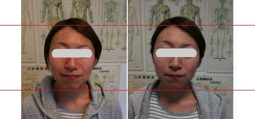 小顔矯正 施術前後の比較画像