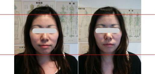 小顔矯正 施術前後の比較画像2